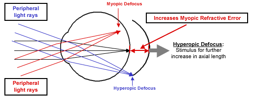 Resultado de imagen de myopia progression